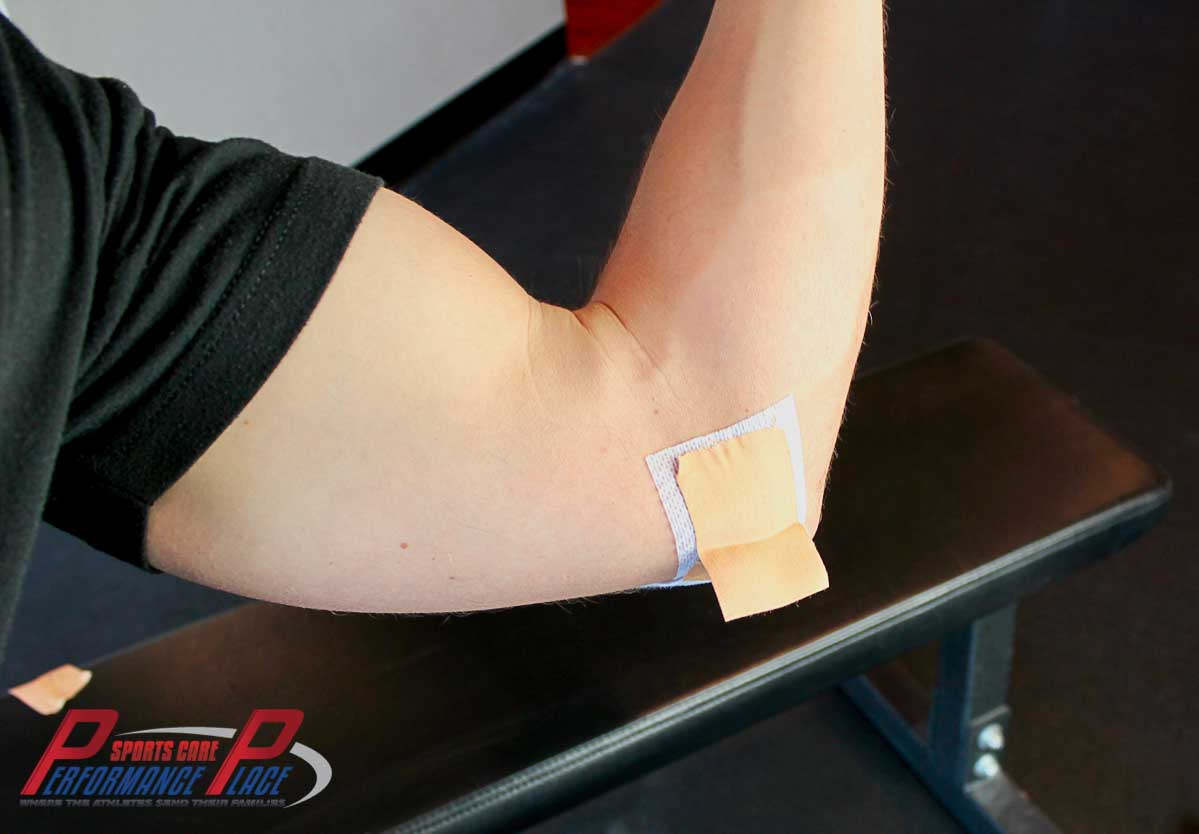 Tab Taping Elbow