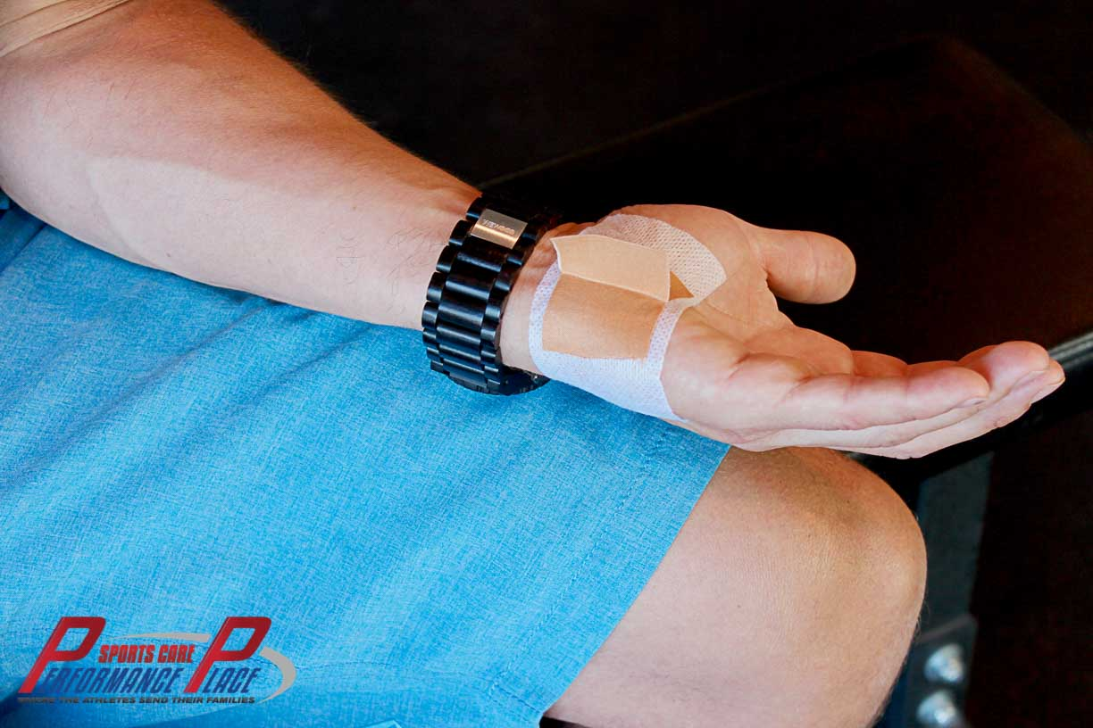 Tab Taping Cyclist Palsy