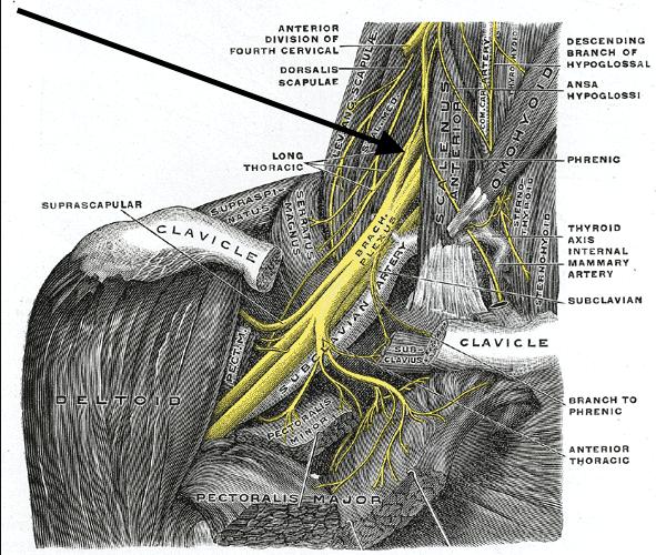 Ulnar nerve compression brachial plexus