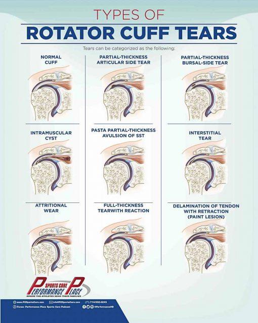 Rotator Cuff Tear Wall Poster