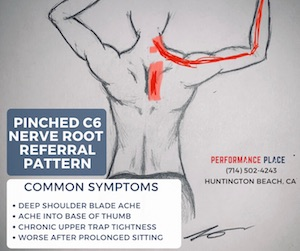 C6-Radiculopathy-pinched-nerve-location