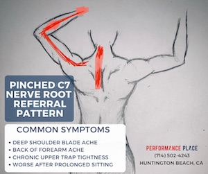 C7-Radiculopathy-pinched-nerve-location