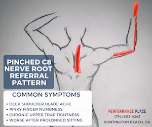 C8-Radiculopathy-pinched-nerve-location