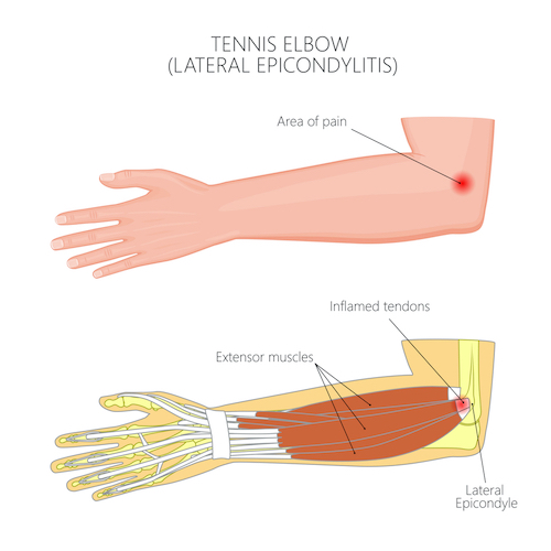 outer-elbow-pain-golfing-lateral